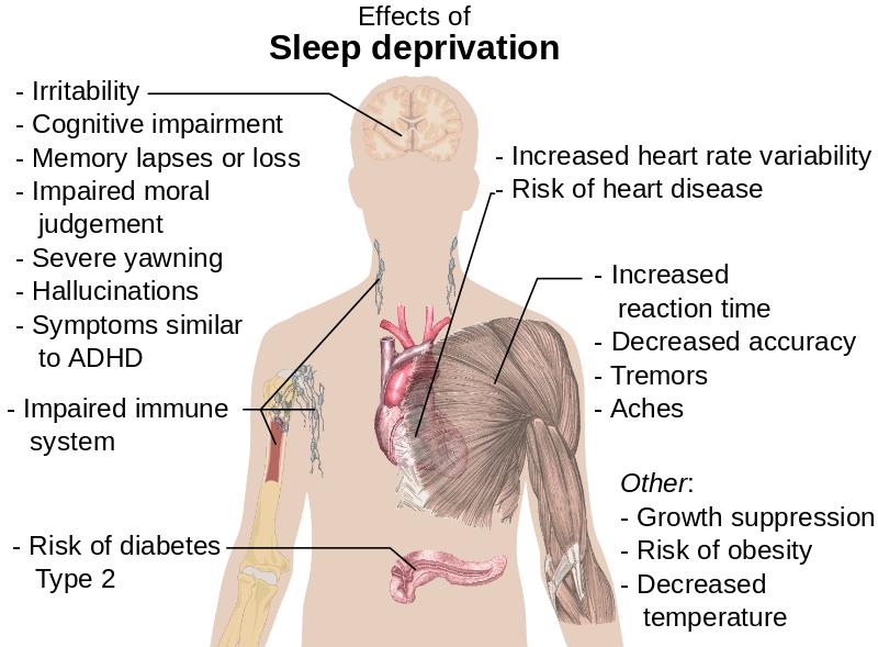 El siguiente cuadro grafica las consecuencias que puede causar el no dormir la cantidad de horas adecuadas - Foto: BBC
